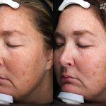 Antioxidant Facial Peel Treatment