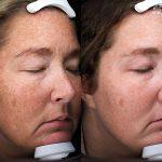 Antioxidant Facial Peel Treatment 16 Weeks