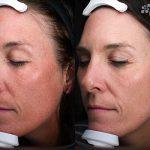 Clay Peel Treatment 16 Weeks