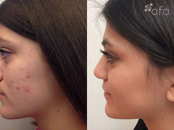 Acne Treatment after 7 Months