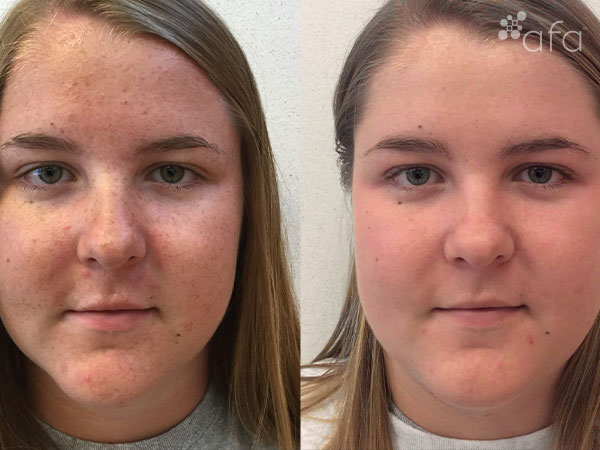 Acne Treatment after 6 months