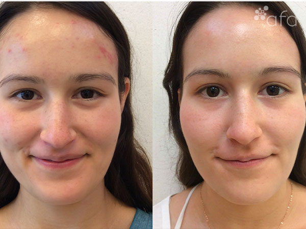 Acne Treatment after 9 months