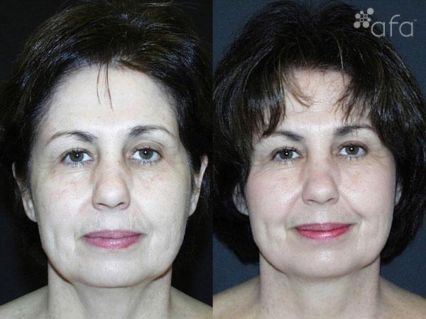 Fine Lines & Wrinkles after 45 Days