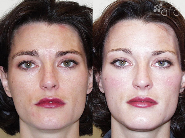 Hyperpigmentation Treatment after 3 Months