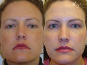 Hyperpigmentation Treatment after 4 Months