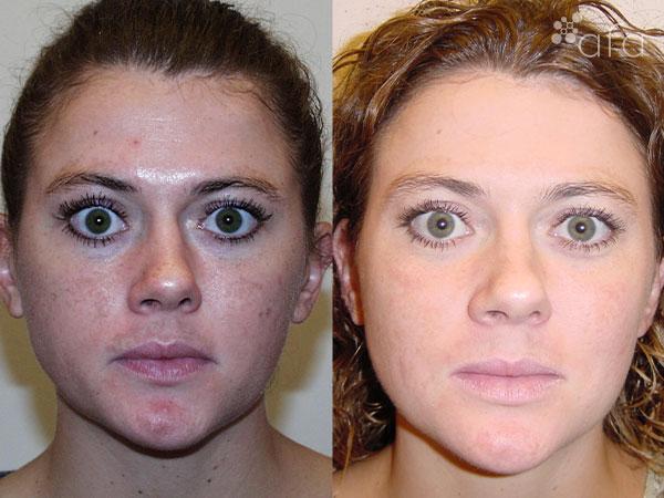 Hyperpigmentation Treatment after 5 Months