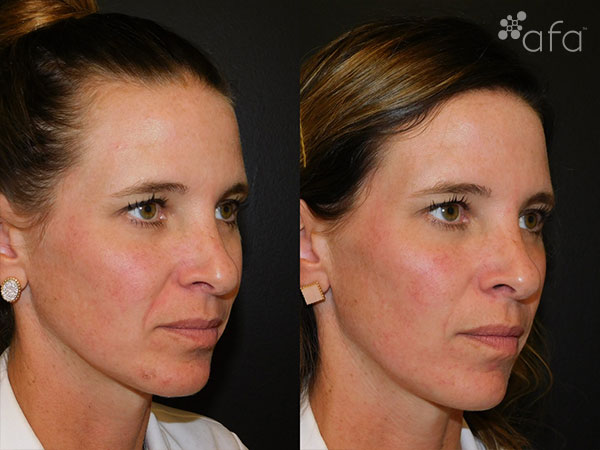 Microneedling Treatment After 3 Weeks