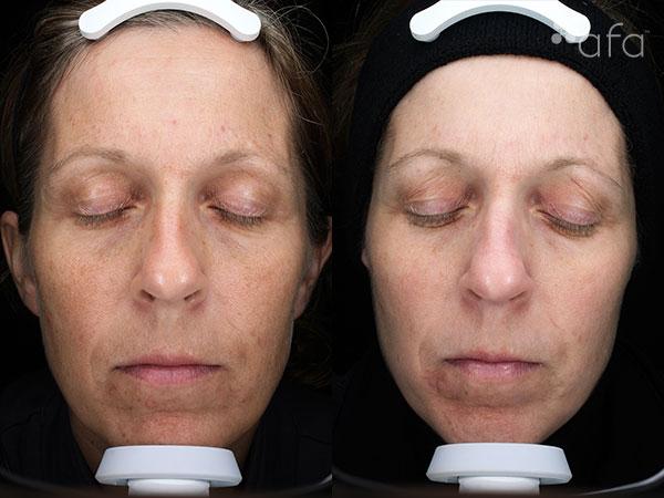 At-home Regimen Treatment 16 Weeks